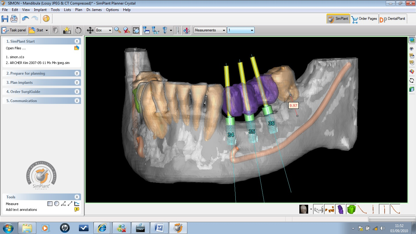 Stroud CBCT 3D dental cone beam CT scanner ...