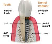 tooth vs dental implant comparison